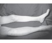 Navi delle estremità più basse thrombophlebitis